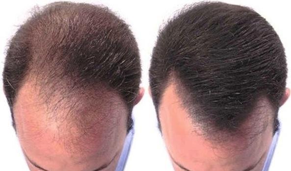 二折$99限量搶購意大利HC+PROBIOTICI男女合用生髮療程(原價$480)